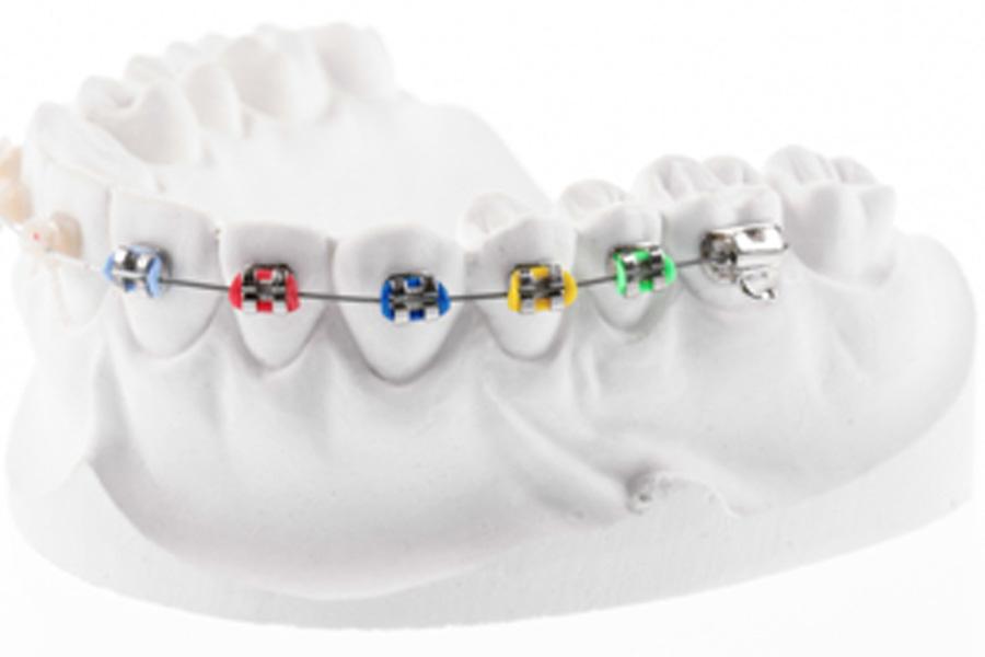 ortodontie-tratament ortodontic