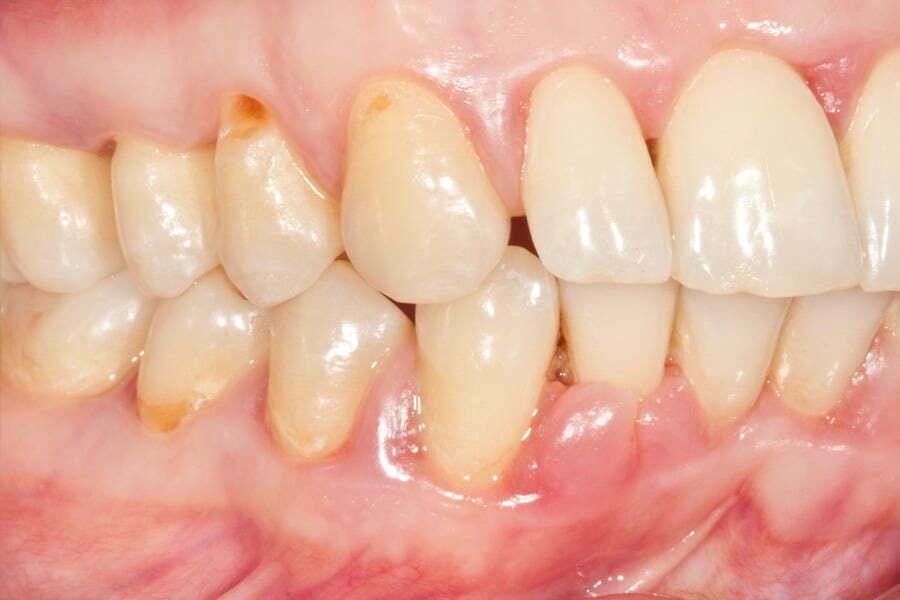 parodontologie-tratament parodontoza