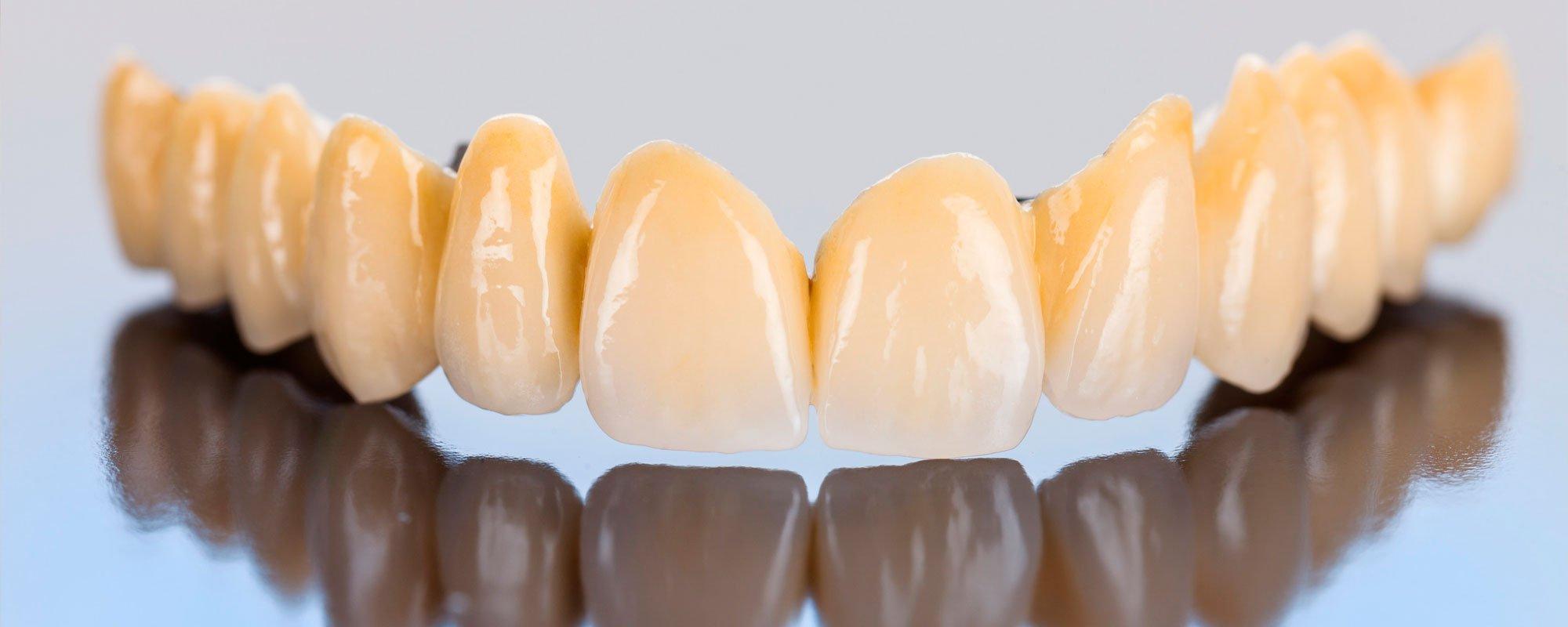 proteze dentare fixe pe implanturi