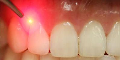 implant dentar cu laser