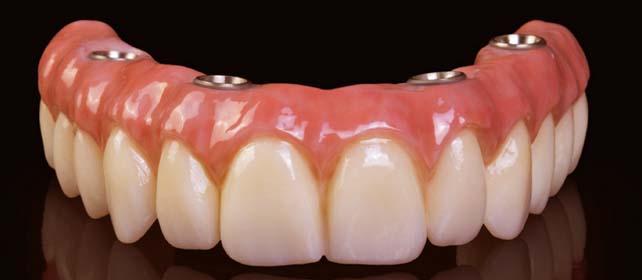 implant la toti dintii