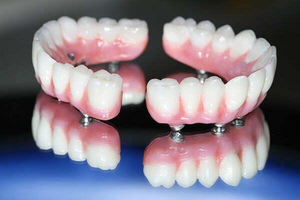implant multiplu de dinti