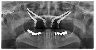 implant zigomatic