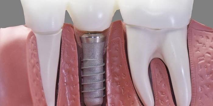 cel mai bun implant dentar