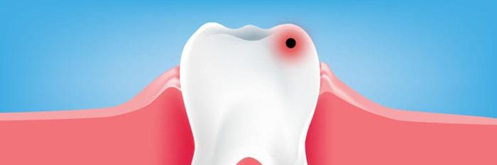diagnosticarea cariilor dentare